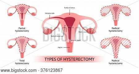Hysterectomy, Surgical Removal Of The Uterus. Medical Vector Illustration Shows 4 Types Of Hysterect