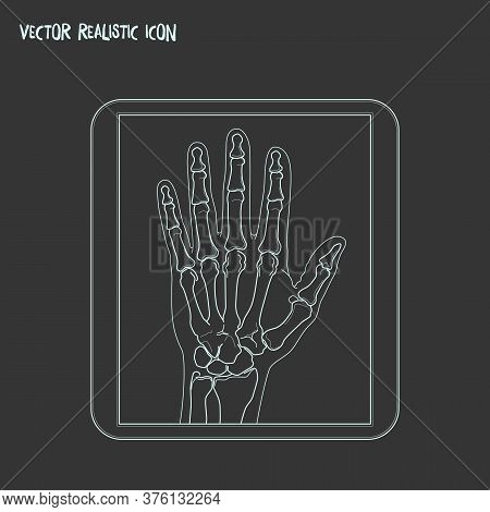 Radiography Icon Line Element. Vector Illustration Of Radiography Icon Line Isolated On Clean Backgr