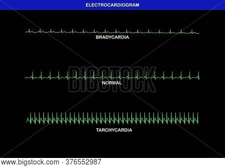 Illustration Of Different Heart Beat On Electrocardiogram