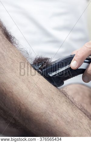 Epilation Of Excessive Hair On The Male Leg. An Electric Razor Filled With Cut Hair.