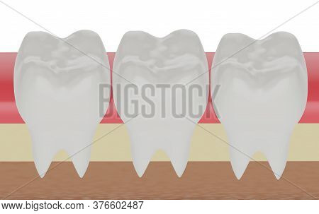 Three Molars In The Gum, 3d Render