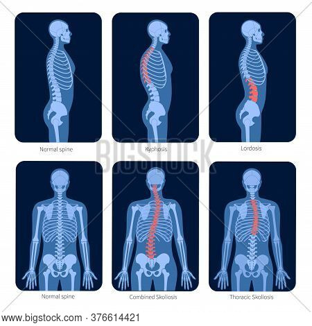 Normal Spine And Types Of Spine Defects. Scoliosis In Human Body. Xray Flat Vector Illustration. Bac
