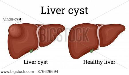 Illustration Of A Healthy Liver And Single Liver Cyst