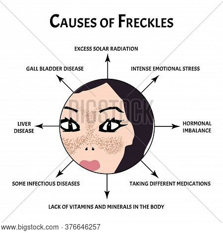Freckles On The Face Of The Cause. Pigmentation On The Skin. A Pigmented Spot On The Skin Of The Fac