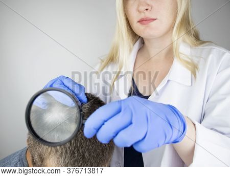A Trichologist Examines The Hair Of A Man Who Begins Alopecia. Consultation With A Dermatologist. Ha