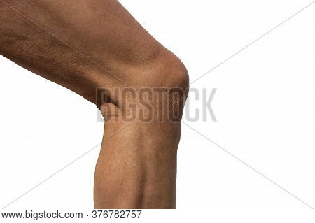 Male Knee Viewed From Side Slightly Bent