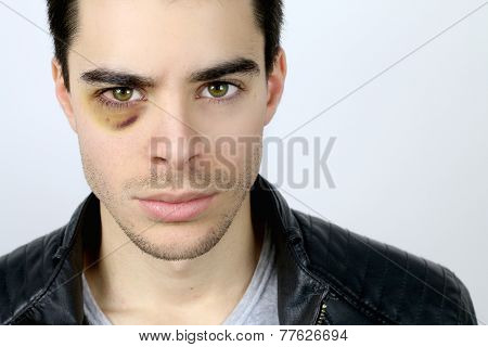 handsome young man with a shiner