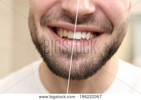 Result of teeth whitening. Smiling young man, closeup