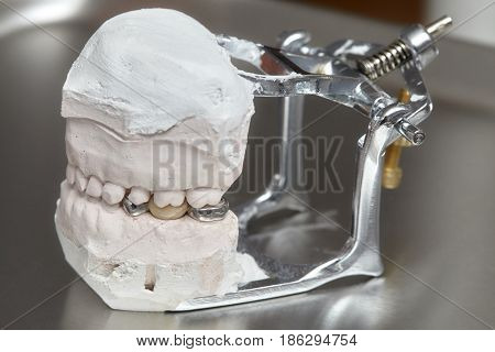 Gray dental prosthesis teeth mold clay human gums model in jaws prothetic laboratory