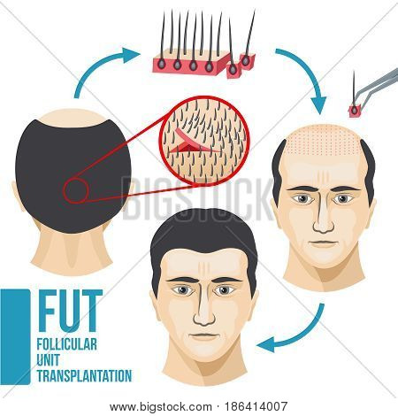 Male hair loss treatment medical vector infographic. Disease hair and baldness, growth and transplant hair illustration