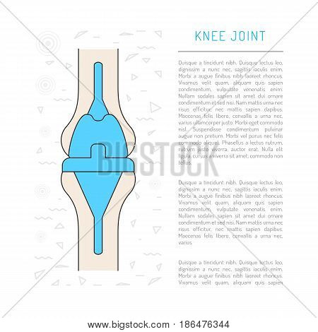 Treatment and prosthetics of the knee joint, Medical illustration in vector isolated on white background