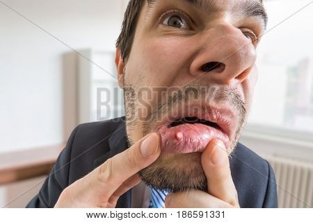 Young Man Is Looking On Ulcer Or Blister In His Mouth In Mirror.