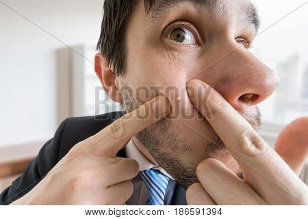 Young Man Is Squeezing Pimple Or Acne On His Skin.