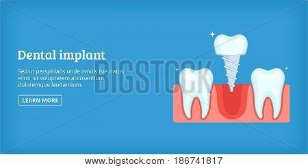Dental implant horizontal concept. Cartoon illustration of dental implant banner horizontal vector for web