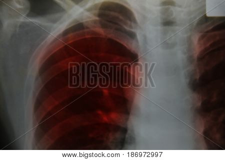 Close Up Chest X-ray