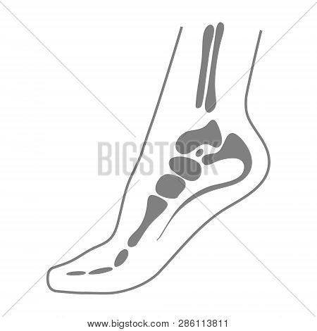 Human Foot With Bones, Leg Icon Isolated On A White Background. Orthopedics, Organs Concept.