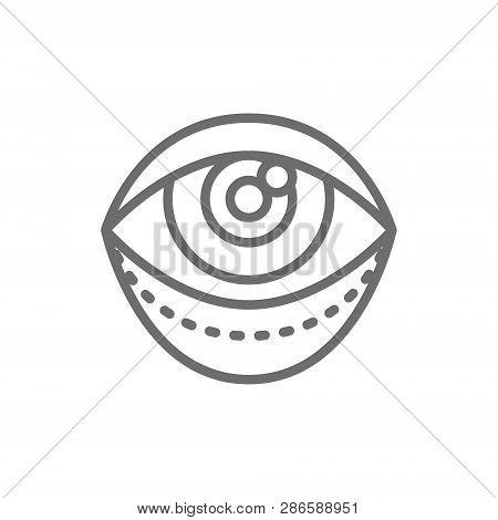 Blepharoplasty, Eyelid Plastic Surgery, Surgical Facial Rejuvenation Line Icon.