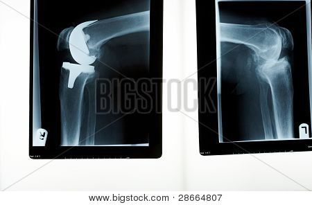 A X-ray Of A Knee Replacement