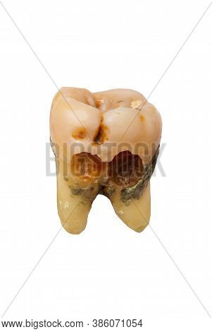 Bad Tooth.tooth Decay. Dental Care Background. Isolated On White Background.