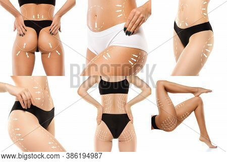 Cellulite Removal Plan. The Black Markings On Young Woman Body Preparing For Plastic Surgery. Concep