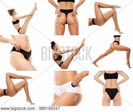 Cellulite Removal Plan. The Black Markings On Young Women Body Preparing For Plastic Surgery. Concep