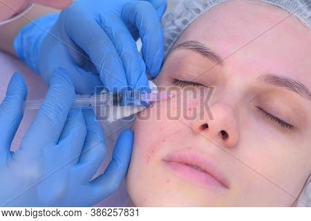 Cosmetologist Doctor Making Multiple Injections Biorevitalization In Woman Face Skin Under Eye, Port