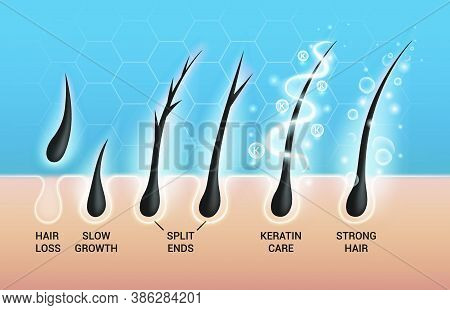 Different Hair Problems And Deep Salon Treatment Vector Illustrations Set, Macro View Of Balding Sca