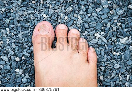 Lines Are Deep Grooved On Toenail Caused By Lack Of Vitamin, Calcium Or Onychomycosis Or Brittle Nai
