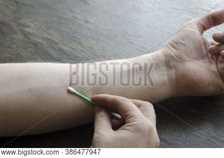 Adult A Man Uses A Cotton Swab To Treat The Wound On His Forearm On His Own. The Domestic Cat Scratc