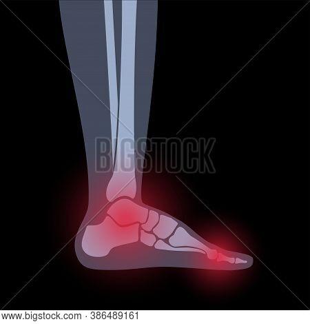 Arthritis Joint In The Ankle. Rheumatoid Arthritis. Pain In Leg. Human Foot Bone Anatomy Flat Vector