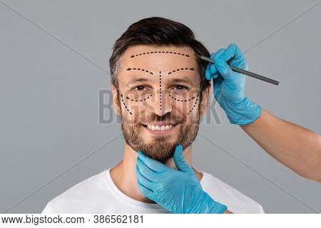 Surgeon Hands Making Marks On Smiling Man Face. Aesthetic Cosmetology, Plastic Surgery Concept. Plas