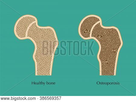 Schematic Sketch Of Normal Femur And Osteoporosis.