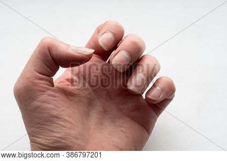 Close-up Of Female Caucasian Hand With Dirty Brittle Nails, Broken Nails. Peeling On Nails. Nail And