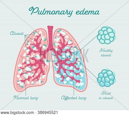 Pulmonary Edema - Anatomical Scheme In Hand Drawn Style. Collection Of Liquid In Human Lung. Fluid I