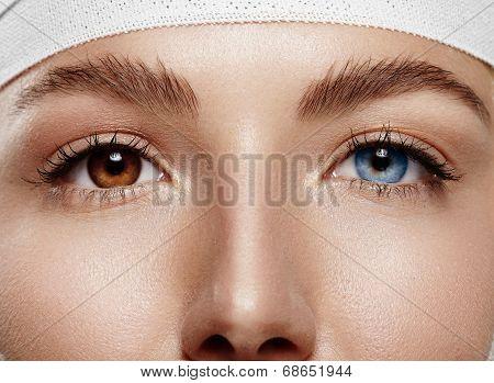 Closeup Woman's Eyes With Heterochromia Iridum