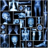 Collection X-ray part of human , Orthopedic operation , Multiple disease ( Fracture , Gout , Rheumatoid arthritis , Osteoarthritis knee , Stroke , Brain tumor , Scoliosis , Tuberculosis  , etc.) poster