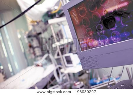 Concept of modern technical equipment to scanning damaged brain.