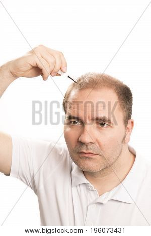 Middle-aged man concerned by hair loss bald baldness alopecia