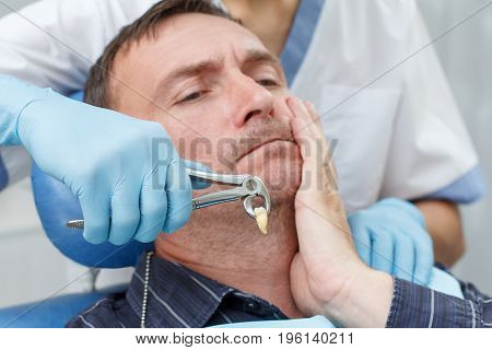 Dentist has extracted a sick tooth from patient in dental office. Focus on stainless steel dental tongs or pliers and extracted lower tooth in it. Dentistry