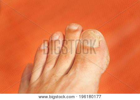 Flies on your fingers. Close up shot of a bad nail finger. Nail care on the foot - pedicure
