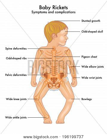 medical vectorial illustration of symptoms and complications of Baby Rickets