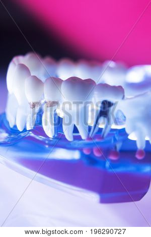 Dental Tooth Root Canal