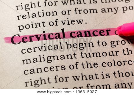Fake Dictionary Dictionary definition of the word cervical cancer. including key descriptive words.