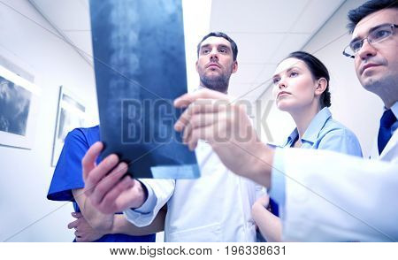 surgery, people, healthcare and medicine concept - group of medics with spine x-ray scan at hospital