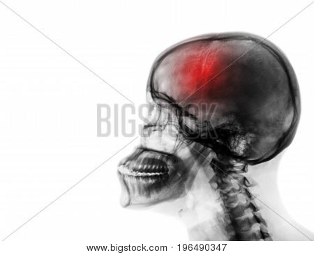 Stroke . Cerebrovascular accident . Film x-ray of human skull and cervical spine . blank area at left side .