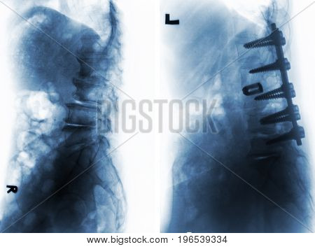 Spondylosis . Film x-ray of lumbar spine and comparison between before surgery ( left image ) and after surgery ( right image ) . Patient was operated and internal fixed . Lateral view .