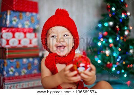 Sweet Toddler Boy With Chickenpox, Varicella Zoster Virus, With Christmas Hat