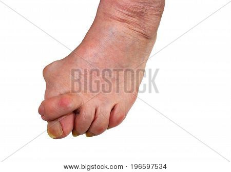 Medetcin, valgus bunion, leg with deformity valgus hallux (Bunion), the consequence of refusal of treatment, space for text