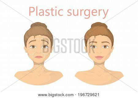 Face plastic surgery for woman. before and after results. From old to young.