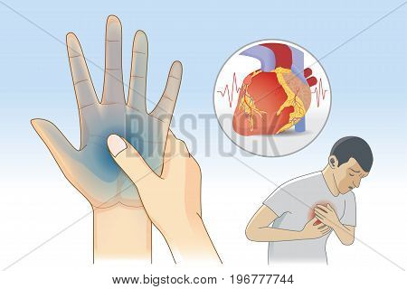 Hand weakness symptom can be warnings signs of a heart attack disease. Illustration about diagnosis and illness.
